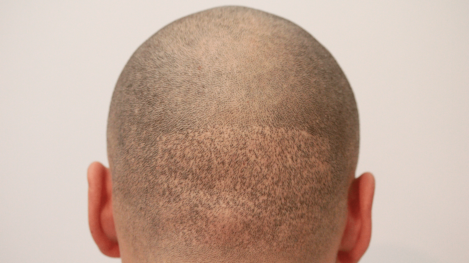 Nach monaten haartransplantation 4 ▷ Haartransplantation
