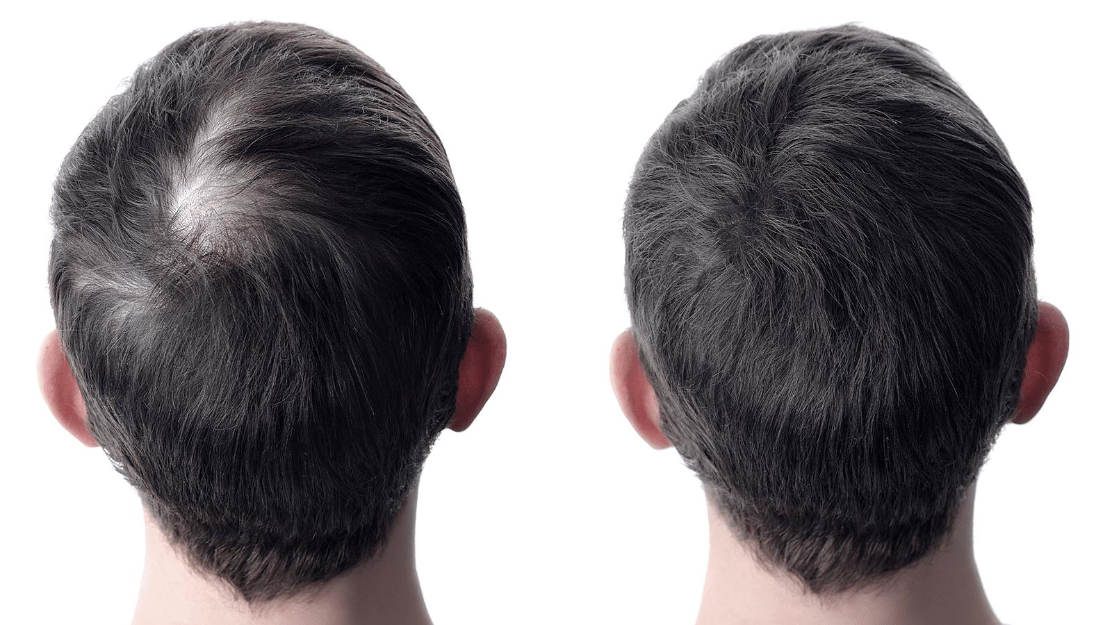 Geheimratsecken nachher minoxidil vorher ▷ Minoxidil